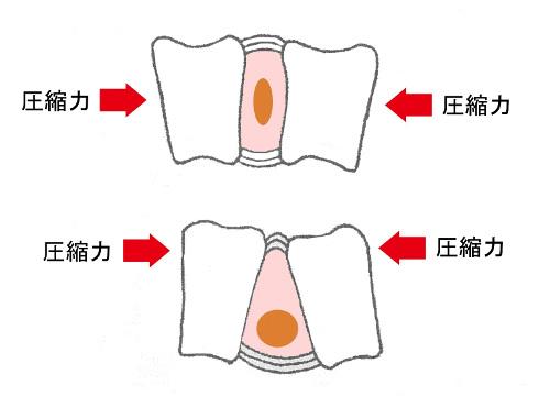 椎間板に掛かる圧縮力